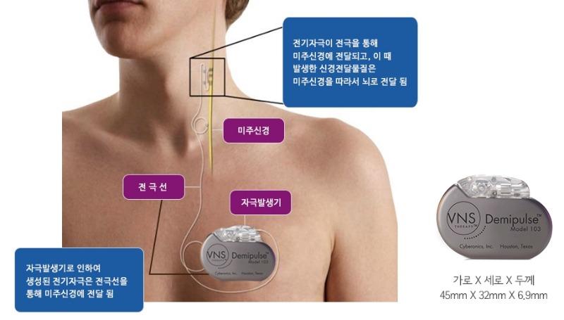 미주신경자극치료 (7).jpg